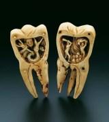 दांत के कीड़े की परिकल्पना